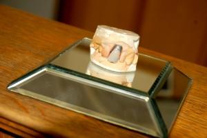 Elvis Presley's Dental Crown
