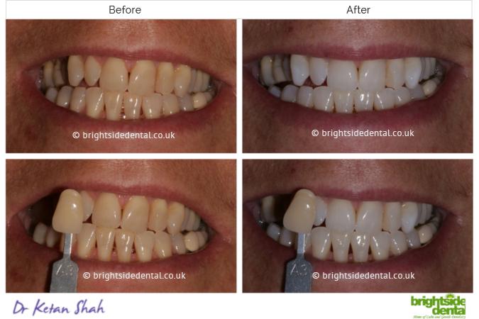 Teeth Whitening Bounds Green Brightside Dental
